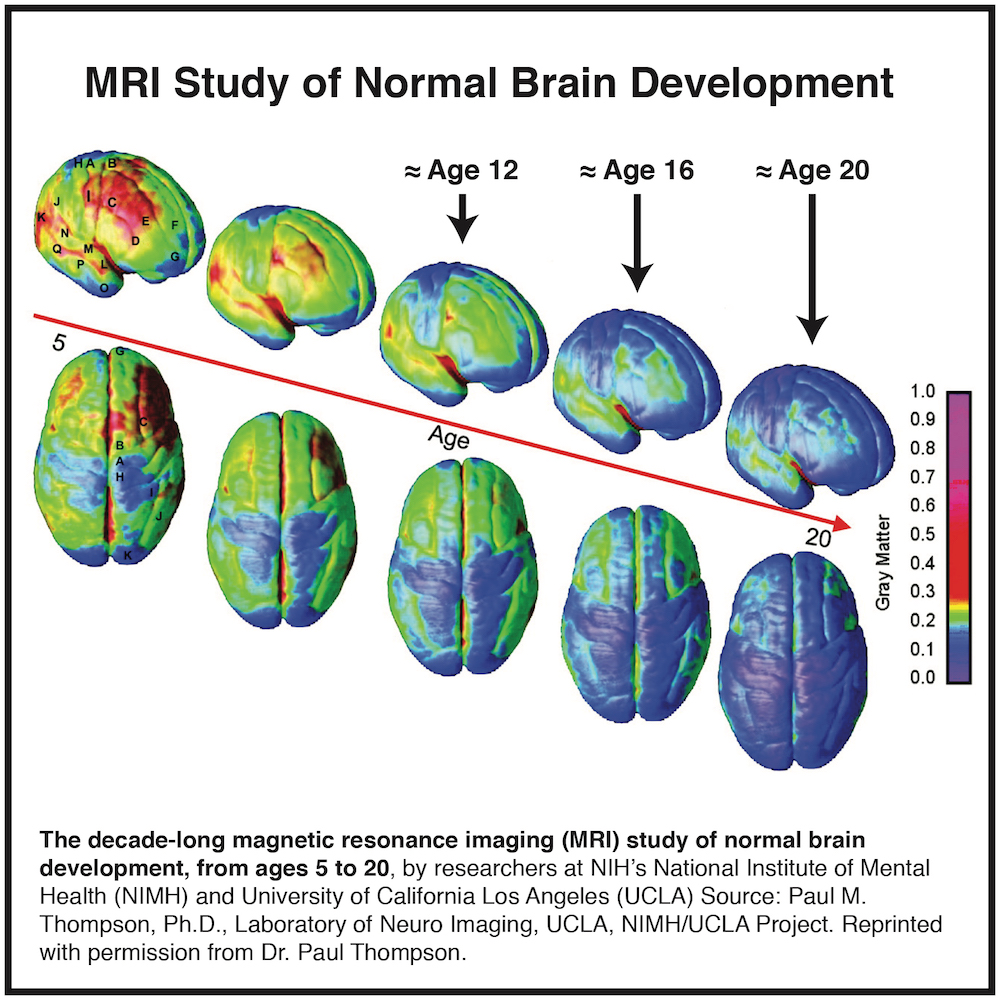 blog-excellence-academy-brain-development